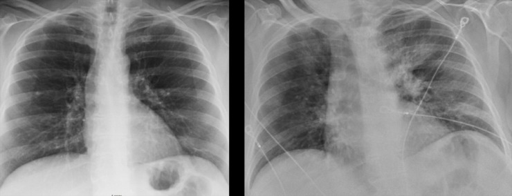 <span><strong>These two chest X-rays are of the same patient, who has been treated at Baptist-Memphis. LEFT: From two years prior, shows a normal-looking chest X-ray. RIGHT: The patient with COVID-19. The white cloudy/cotton-y material in the lungs is pneumonia from COVID-19.</strong> (submitted)</span>
