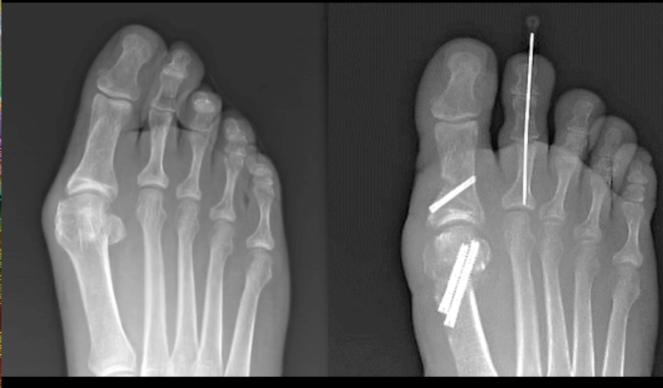 <strong>The true bunion, from a surgeon&rsquo;s point of view, involves the first metatarsal, the bone leading to the big toe.&nbsp;As the bones shift, the metatarsal eventually pushes out on the inside of the foot, creating a bony bump that can be both painful and difficult to fit with a shoe. The photo above shows a foot before (left) and after corrective bunion surgery.&nbsp;</strong>(Courtesy of Campbell Clinic)
